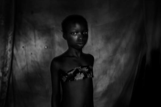 planchado de senos en camerun 11