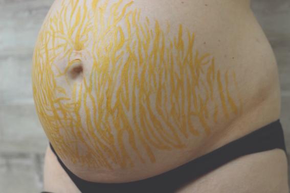 cosas que le pasan a tu abdomen despues de un bebe 1