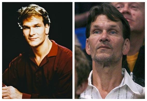 fotografias de patrick swayze antes y despues del cancer 1