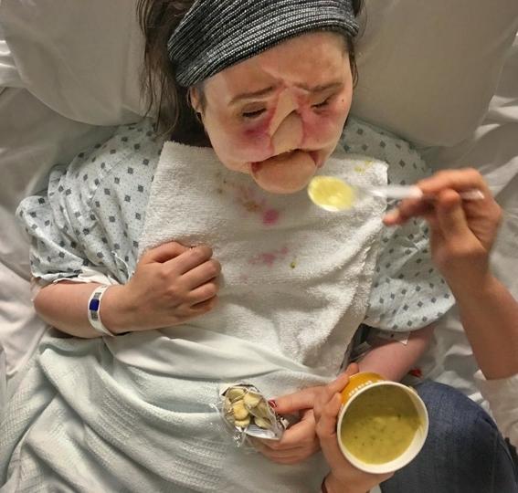 fotos del trasplante de cara mas dificil 5
