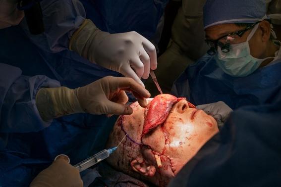 fotos del trasplante de cara mas dificil 8