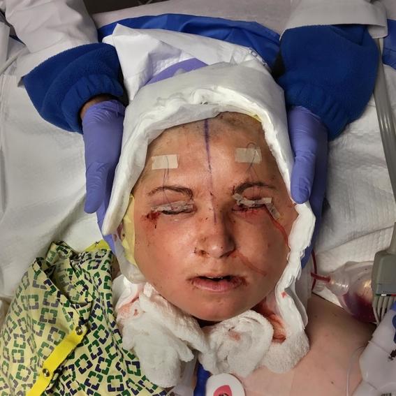 fotos del trasplante de cara mas dificil 9