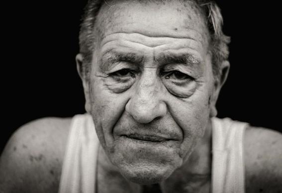 arrugas en la frente riesgo de enfermedades cardiovasculares 1