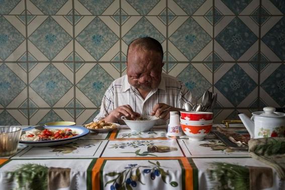 fotos de victimas de catastrofes y ensayos nucleares bombas 2