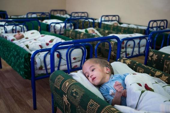 fotos de victimas de catastrofes y ensayos nucleares bombas 10