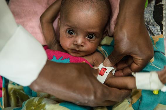 hambre podria matar 600 mil ninos 1