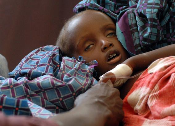 hambre podria matar 600 mil ninos 3