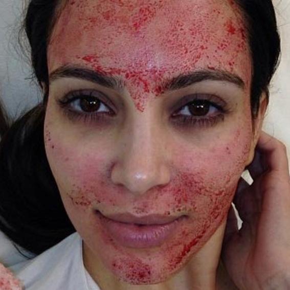 riesgos que tiene un facial de vampiro' 1