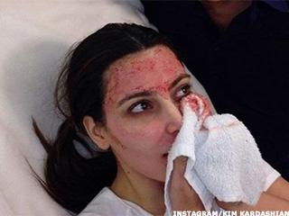 riesgos que tiene un facial de vampiro' 3