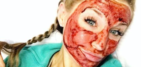 facial de vampiro contagia a cliente de vih 2
