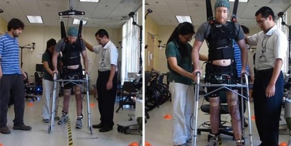 paraplejico logra caminar bajo estimulacion electrica 2