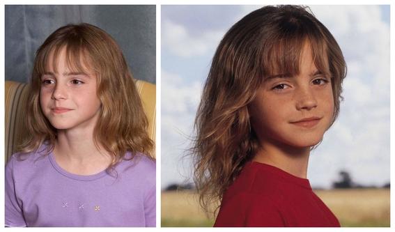 fotos del antes y despues de emma watson y sus cambios 1