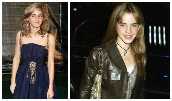 fotos del antes y despues de emma watson y sus cambios 3