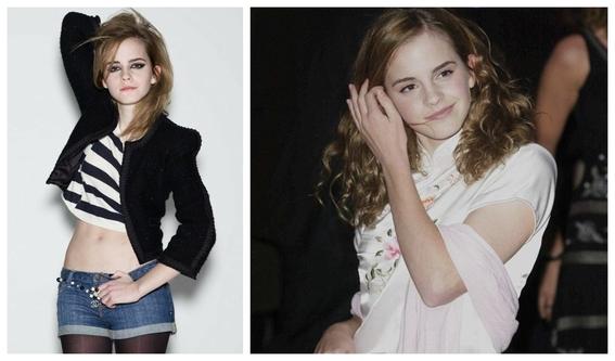 fotos del antes y despues de emma watson y sus cambios 6