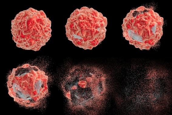 la inmunoterapia reemplazara la quimioterapia para tratar el cancer 5