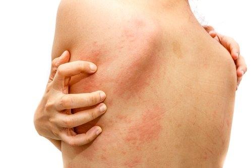 acne herpes y otras enfermedades de la piel que podrias tener en este momento sin darte cuenta 4