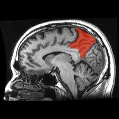cientificos encuentran parte de cerebro responsable de libre albedrio 2