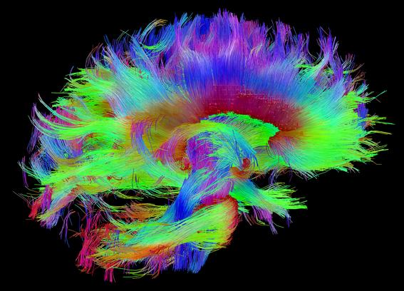 retirar las celulas mas viejas puede mantener joven el cerebro 1