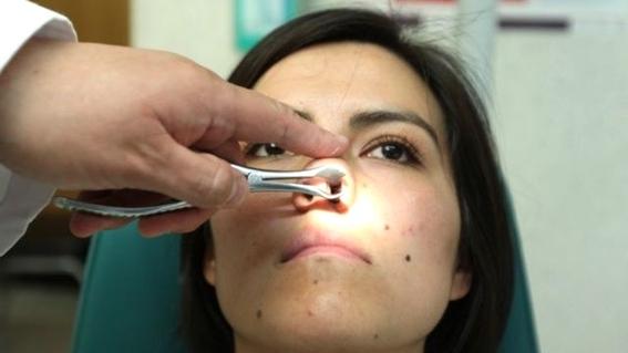 nariz cancer cancer de nariz existe cancer de nariz sintomas cancer sintomas cancer de nariz como prevenir cancer como prevenir cancer de  2