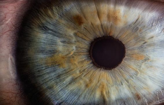nano gotas corregir miopia vision 1