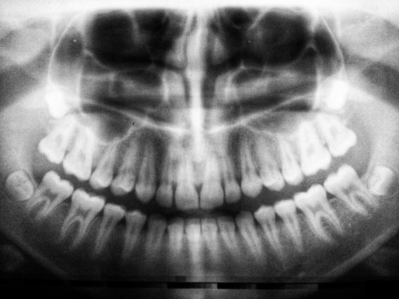 cada cuanto ir al dentista 3