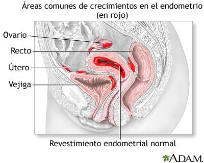 que es endometriosis 1
