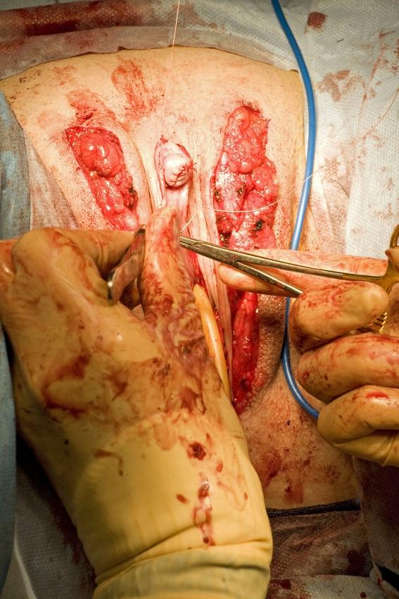 fotos allen johnson de una cirugia de reasignacion de sexo 7
