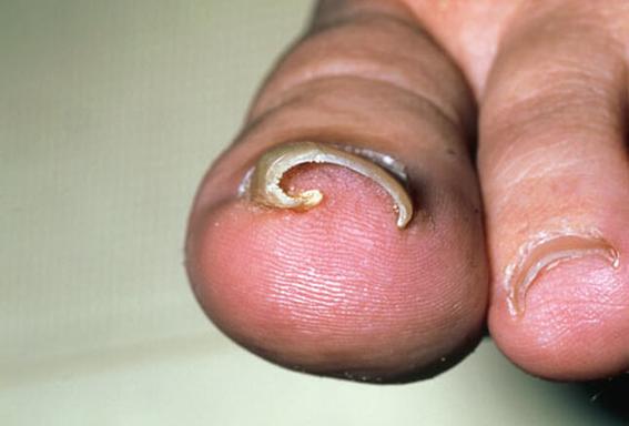 enfermedades horribles que te puede provocar morderte las unas 5