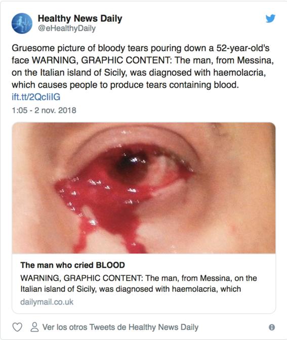 caso de hombre que llora sangre en italia 2