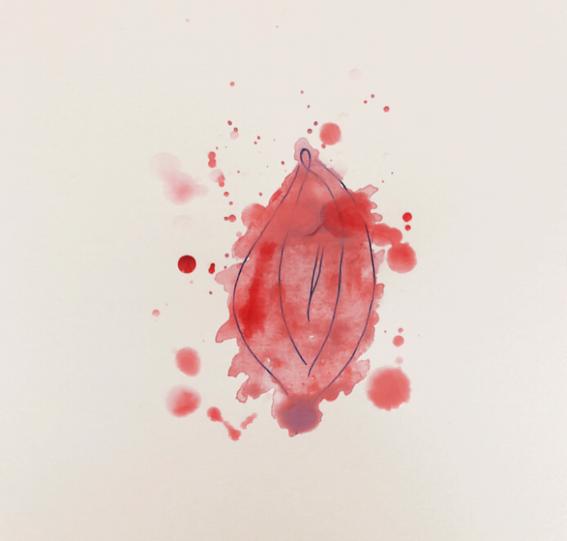 como es vivir con vulvodinia dolor en la vulva 2
