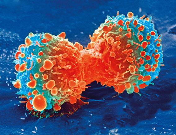 virus del valle de seneca podria destruir tumores cancerigenos 2