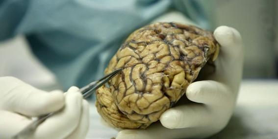 hallan en el cerebro bacterias similares a las del intestino 2