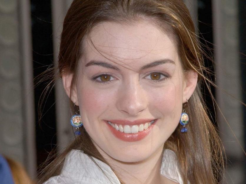 25 fotos del antes y después de Anne Hathaway 5