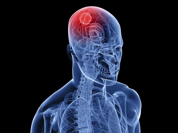 primera prueba para tratar cancer de cerebro con cannabis 1