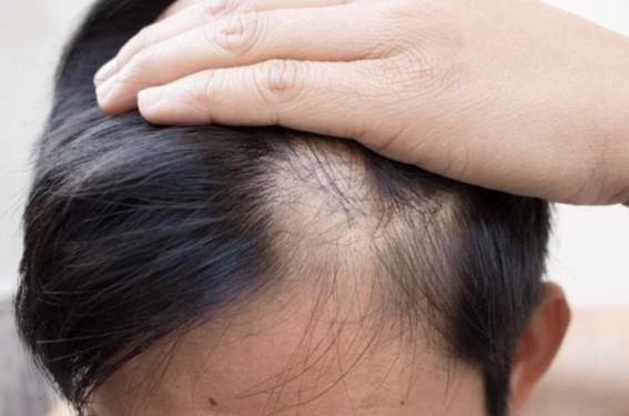 estudio determina por que tenemos pelo en algunas partes del cuerpo 2