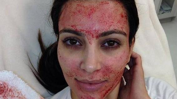 facial de pene tratamiento estetico de moda en hollywood celebridades 1