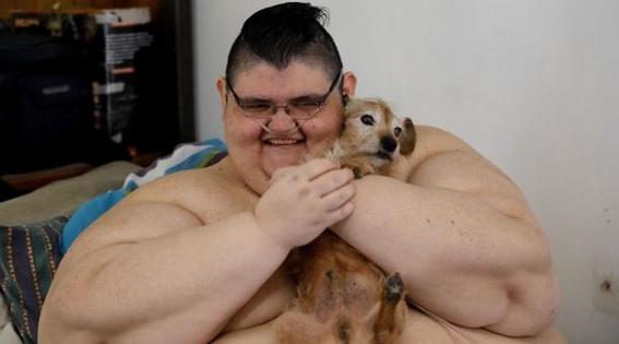 el hombre mas obeso del mundo pierde 300 kilos 2
