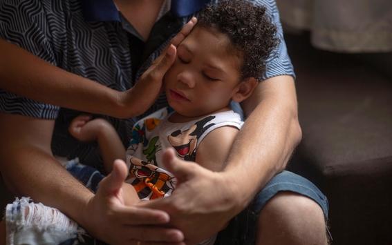 sindrome congenito del zika en brasil 2
