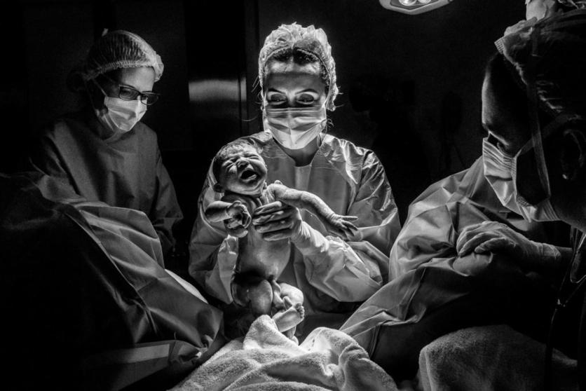 16 poderosas fotografías de todo lo que pasa en una sala de partos 3