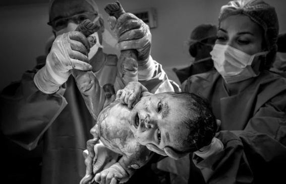 16 poderosas fotografías de todo lo que pasa en una sala de partos