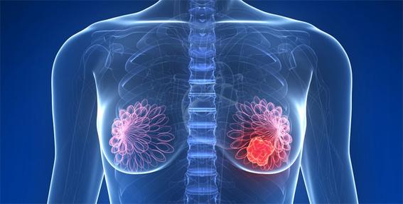 15 por ciento de los casos de cancer de mama son por herencia genetica 4