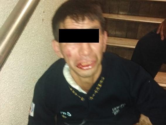 ladron rocia gas pimienta en el metro 1