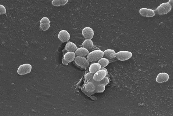 cofeprisrevelaquehaybacteriasfecalesen5playasdeacapulco 3