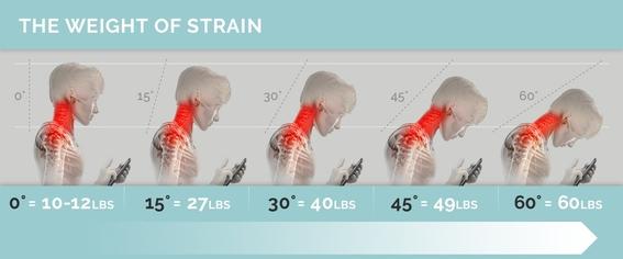uso excesivo del celular problemas del cuello 2