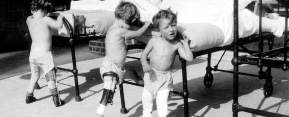 Crudas fotografías que muestran la enfermedad que podría regresar con los antivacunas
