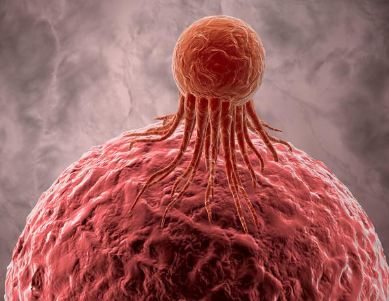 la vacuna contra el cancer de mama ya curo a una mujer llamada lee mercker quien se sometio al tratamiento experimental y logro acabar con la en 1