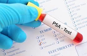 una prueba de orina actualmente en desarrollo para la deteccion del cancer de prostata podria ser uno de los grandes avances en el tratamiento de 1