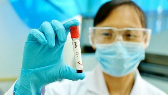 las autoridades han alertado a la poblacion sobre el virus relacionado con el sras descrito coloquialmente como una neumonia atipica 1