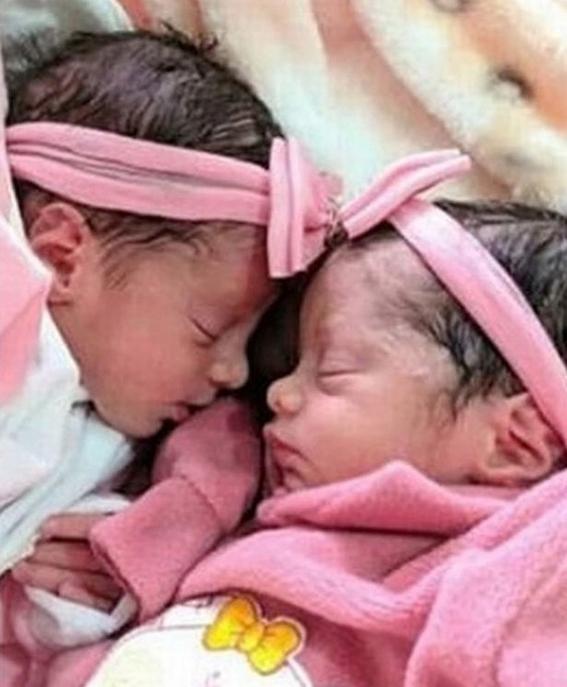 acusan a perro de asesinar a gemelas recien nacidas 2