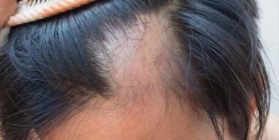 la perdida de cabello podria ser un nuevo sintoma del covid19 1
